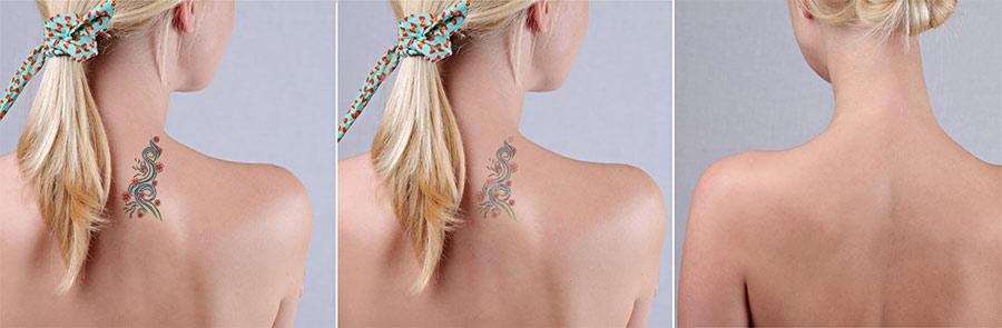 Laserbehandlung von Tattoos