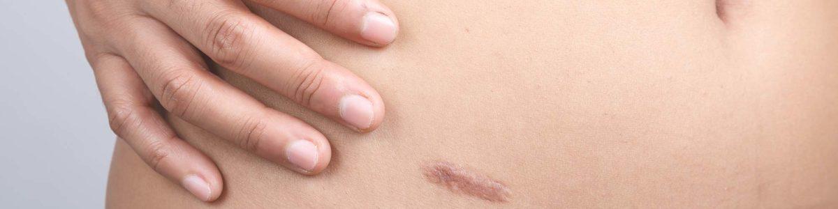 Narben behandeln, Narbenwucherung