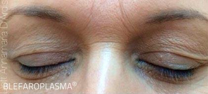 Schlupflider vor der Augenlidstraffung ohne OP